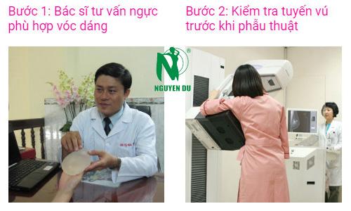 quy trình nâng ngực nano chip 1
