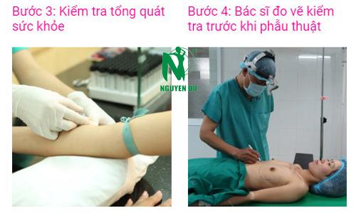 quy trình nâng ngực nano chip 3